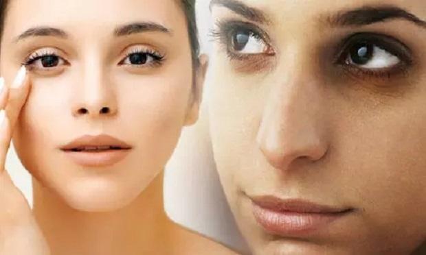 Skin Care Tips : आंखों के नीचे आ रहे काले घेरे तो दूध ऐसे करेगा हटाने में मदद