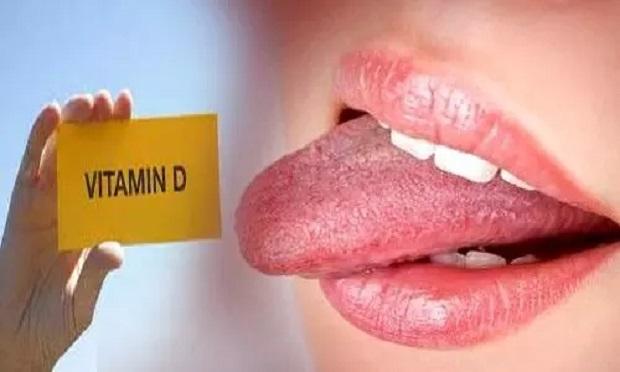 आपकी जीभ ऐसे बताएगी कि आप में Vitamin D की कमी है या नहीं ?